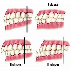 problemi denti