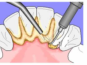 prevenzione ig orale 2